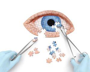 Κερατόκωνος: Τι είναι και πώς αντιμετωπίζεται η επικίνδυνη πάθηση των ματιών