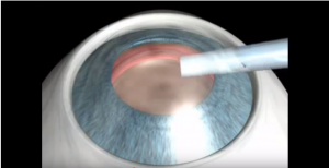Refractive lenses ICL Animation